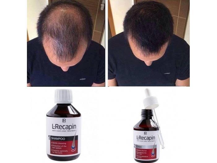 Set  L-Recapin 1+1 prevenirea căderii părului şi regenerare - 1/2